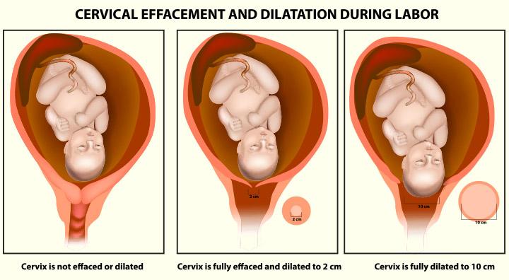 هل يمكنني التحقق من توسع عنق الرحم بنفسي قبل الولادة ؟!
