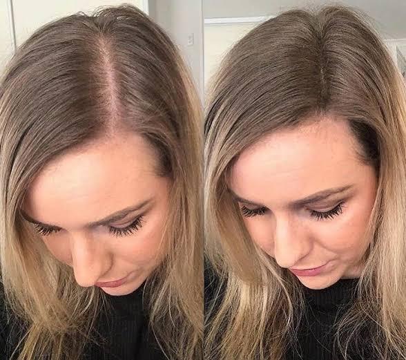 """إليكِ 7 أسباب تجعل شعرك يتوقف عن النمو ويصبح نحيفًا """"خفيفًا"""""""